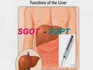 Obat Penurun SGOT dan SGPT Tinggi